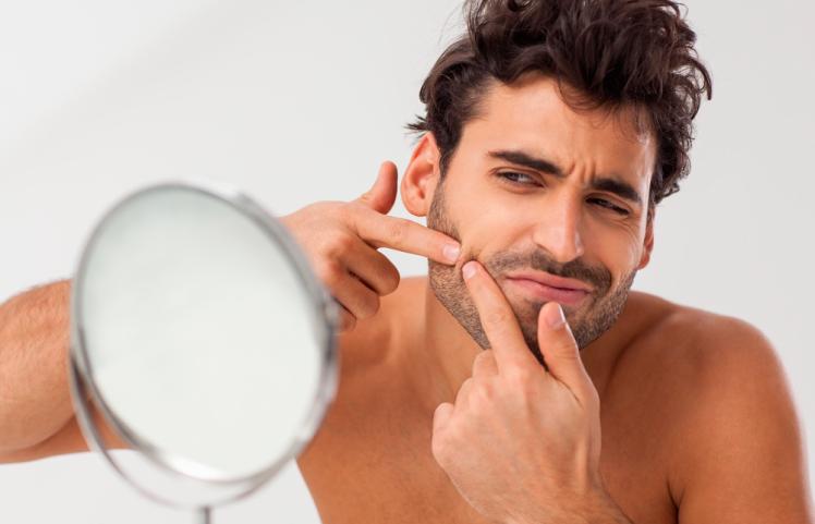 mitos acne horizontal